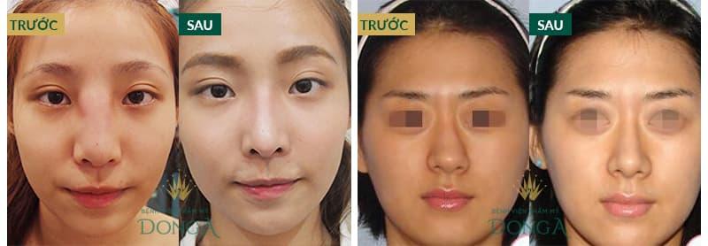 Nâng mũi sửa lại - Giải pháp hàng đầu cho mọi trường hợp mũi hỏng - Ảnh 9