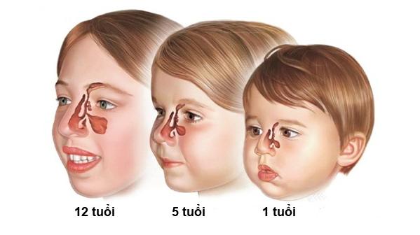 Bé mũi tẹt » Những nguy hiểm không lường trước khi vuốt mũi cho bé - Ảnh 4