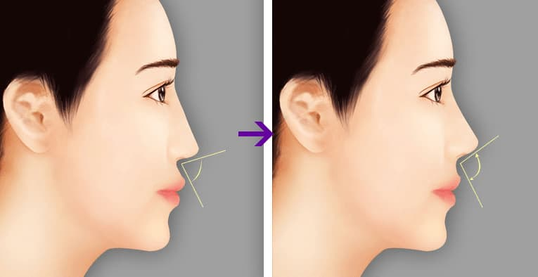 Chỉnh hình lỗ mũi - Phương pháp tạo lỗ mũi hạt chanh đẹp hoàn hảo 2