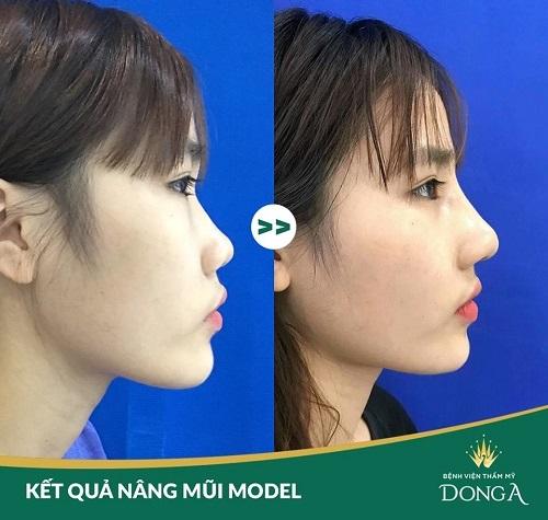 Giá nâng mũi Model 2019 - Chi phí hợp lý cho dáng mũi Đẹp lâu - Hình 1