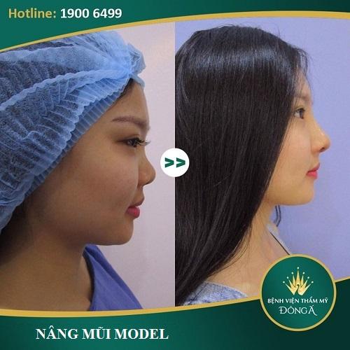 Giá nâng mũi Model 2019 - Chi phí hợp lý cho dáng mũi Đẹp lâu - Hình 3