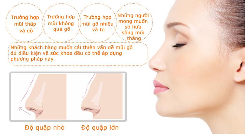 Chỉnh hình mũi gồ - Giải pháp chỉnh hình mũi gồ hiệu quả nhất - Ảnh 2
