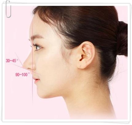 Mũi hếch là gì? Mũi hếch là mũi như thế nào?
