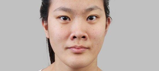 Mũi hếch là gì? Hình dạng lỗ mũi hếch thường gặp ở người châu Á