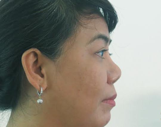 Mũi hếch là gì? Hình dạng lỗ mũi hếch thường gặp ở người châu Á nhìn nghiêng