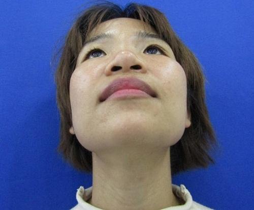 Mũi tẹt là gì? 5 Bí kíp biến mũi tẹt thành mũi cao Hiệu Quả ngay tại nhà - Hình 4