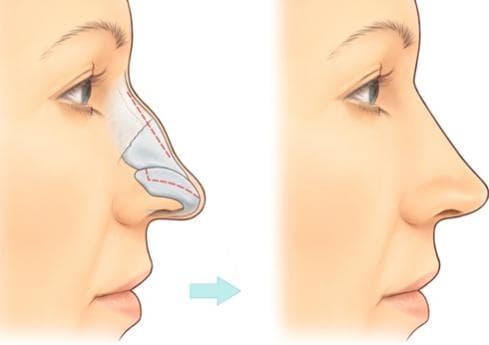 Chỉnh hình mũi gồ - Giải pháp chỉnh hình mũi gồ hiệu quả nhất - Ảnh 3