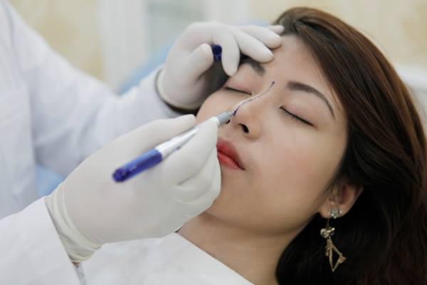 Nâng mũi không phẫu thuật - Hiệu quả nhanh chóng, tiết kiệm chi phí 3