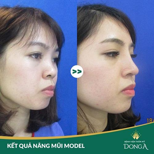 Nâng mũi Model 4D sụn sườn - Những ưu điểm và lưu ý khi thực hiện 4