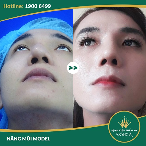 Nâng mũi sửa lại - Giải pháp hàng đầu cho mọi trường hợp mũi hỏng - Ảnh 6