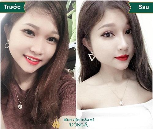 Bác sĩ Park Hyo Jin - Chuyên gia thẩm mỹ hàng đầu Hàn Quốc - Hình 6