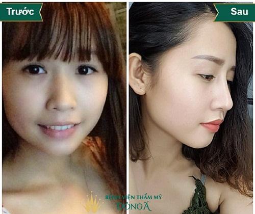 [Chia sẻ] Các dáng mũi nâng tôn lên nét Kiêu Sa của người phụ nữ - Hình 5