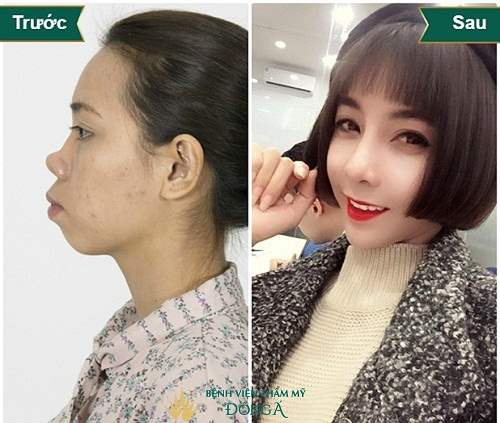 Bác sĩ Park Hyo Jin - Chuyên gia thẩm mỹ hàng đầu Hàn Quốc - Hình 8