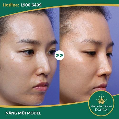Chỉnh hình mũi gồ - Giải pháp chỉnh hình mũi gồ hiệu quả nhất - Ảnh 8