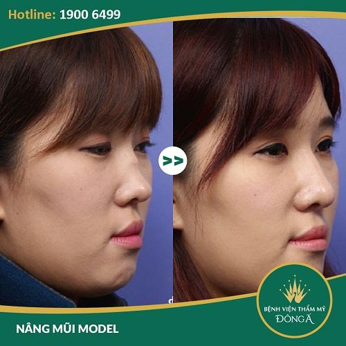 Chỉnh hình mũi gồ - Giải pháp chỉnh hình mũi gồ hiệu quả nhất - Ảnh 6