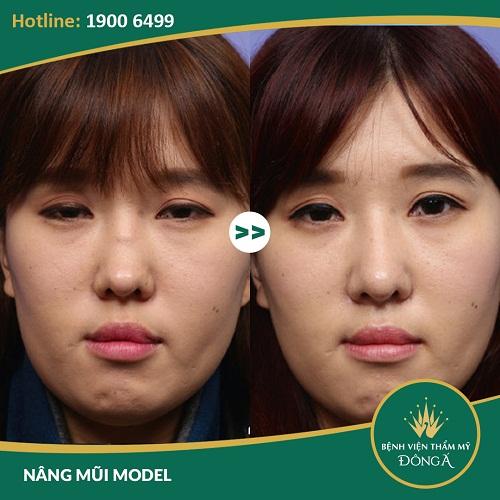 Chỉnh hình mũi gồ - Giải pháp chỉnh hình mũi gồ hiệu quả nhất - Ảnh 7