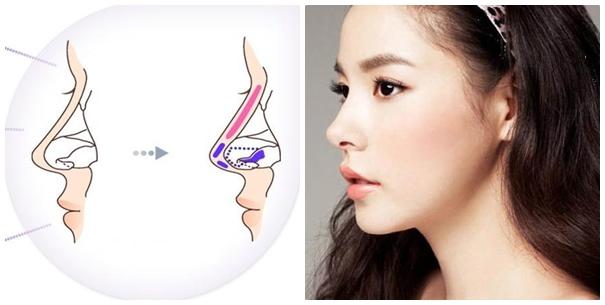 3 Phương pháp sửa mũi hếch Hiệu quả, An toàn và Đẹp Tự Nhiên - Hình 2