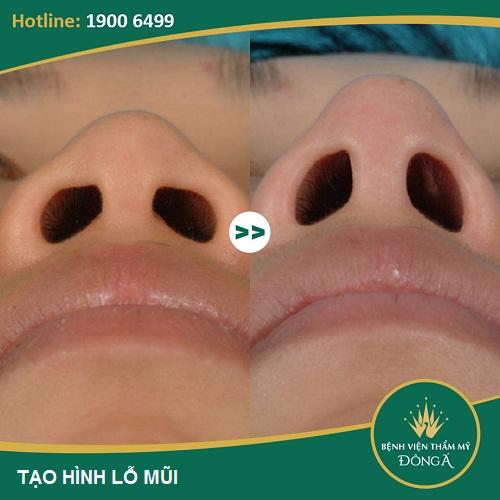 Chỉnh hình lỗ mũi - Phương pháp tạo lỗ mũi hạt chanh đẹp hoàn hảo 6