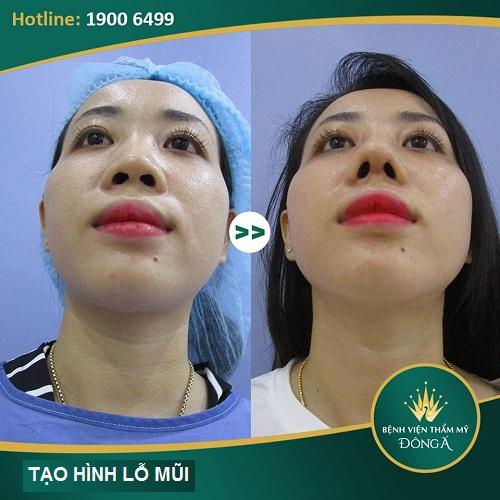 Chỉnh hình lỗ mũi - Phương pháp tạo lỗ mũi hạt chanh đẹp hoàn hảo 7