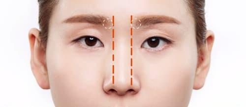 Thu nhỏ đầu mũi - 6 Ưu điểm và những lưu ý chăm sóc sau phẫu thuật - Ảnh 1