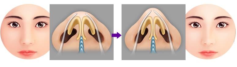 Chỉnh hình lỗ mũi - Phương pháp tạo lỗ mũi hạt chanh đẹp hoàn hảo 5