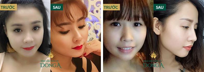 Hình ảnh nâng mũi đẹp xuất sắc của khách hàng tại Đông Á - Ảnh 4