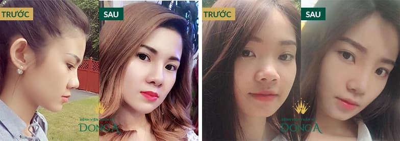 Hình ảnh nâng mũi đẹp xuất sắc của khách hàng tại Đông Á - Ảnh 5