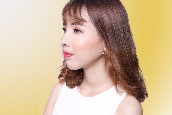 Cao Thị Oanh - Tái sinh dáng mũi thay đổi cuộc đời - Ảnh 6