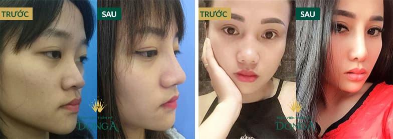 Hình ảnh nâng mũi đẹp xuất sắc của khách hàng tại Đông Á - Ảnh 2
