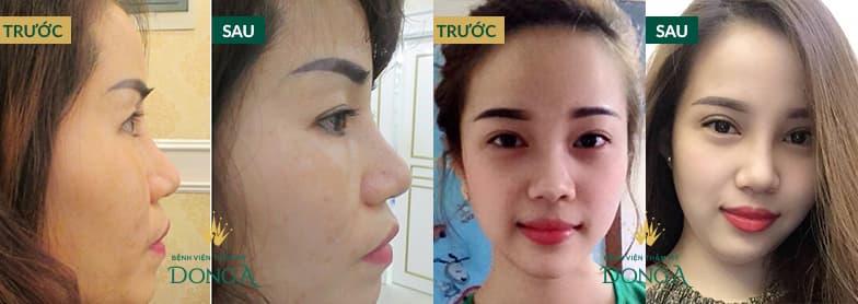 Hình ảnh nâng mũi đẹp xuất sắc của khách hàng tại Đông Á - Ảnh 6