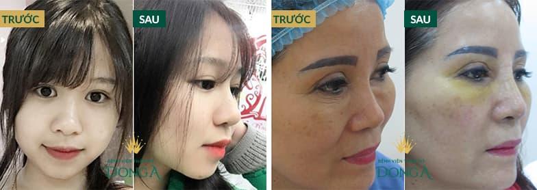 Hình ảnh nâng mũi đẹp xuất sắc của khách hàng tại Đông Á - Ảnh 3