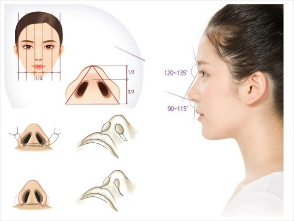 Cánh mũi to dày - Cách khắc phục một lần cho hiệu quả vĩnh viễn - Ảnh 4