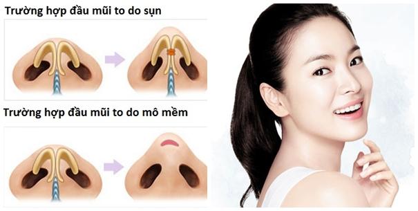 Cánh mũi to dày - Cách khắc phục một lần cho hiệu quả vĩnh viễn - Ảnh 5