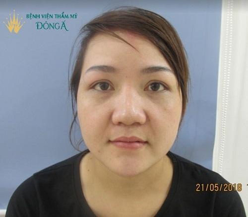 Cánh mũi to dày - Cách khắc phục một lần cho hiệu quả vĩnh viễn - Ảnh 1