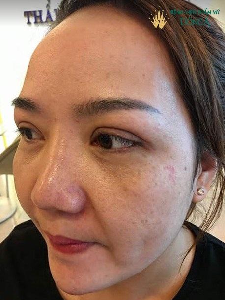Cánh mũi to dày - Cách khắc phục một lần cho hiệu quả vĩnh viễn - Ảnh 3