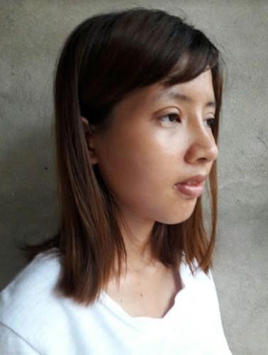 Cao Thị Oanh - Tái sinh dáng mũi thay đổi cuộc đời - Ảnh 3