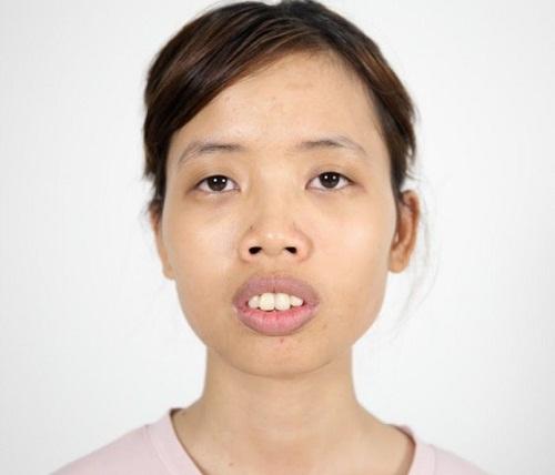 Cao Thị Oanh - Tái sinh dáng mũi thay đổi cuộc đời - Ảnh 2