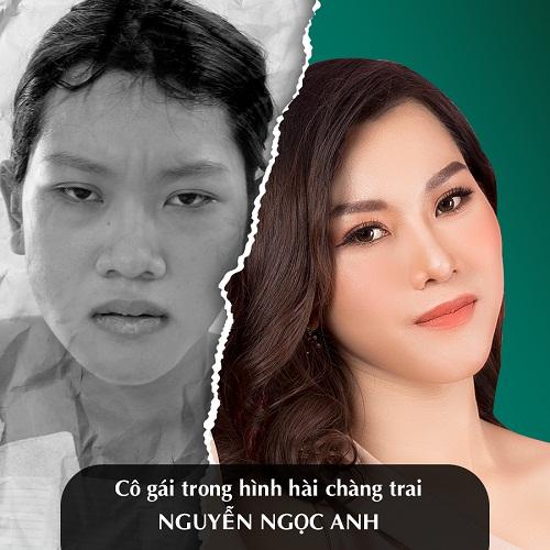 Hình ảnh nâng mũi đẹp xuất sắc của khách hàng tại Đông Á - Ảnh 13