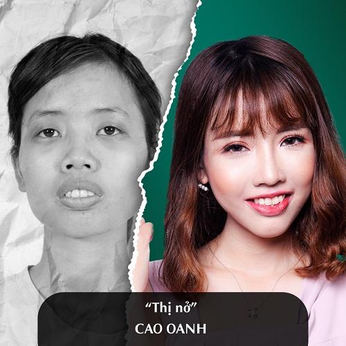Hình ảnh nâng mũi đẹp xuất sắc của khách hàng tại Đông Á - Ảnh 11