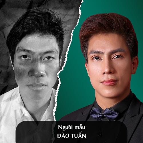 Hình ảnh nâng mũi đẹp xuất sắc của khách hàng tại Đông Á - Ảnh 10