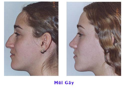 Mũi gãy và 5 điều nhất định phải biết để có sống mũi cao thẳng, cân đối - Ảnh 5