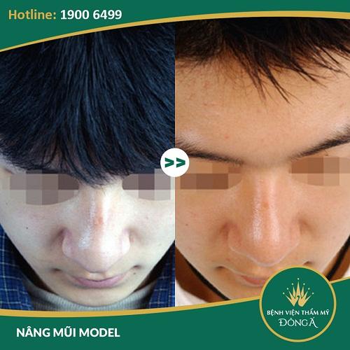 Mũi gãy và 5 điều nhất định phải biết để có sống mũi cao thẳng, cân đối - Ảnh 10
