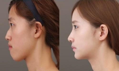 Mũi gãy và 5 điều nhất định phải biết để có sống mũi cao thẳng, cân đối - Ảnh 4