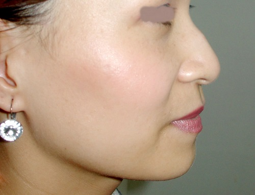 Mũi gãy và 5 điều nhất định phải biết để có sống mũi cao thẳng, cân đối - Ảnh 1