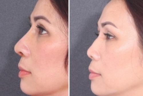 Mũi gãy và 5 điều nhất định phải biết để có sống mũi cao thẳng, cân đối - Ảnh 3