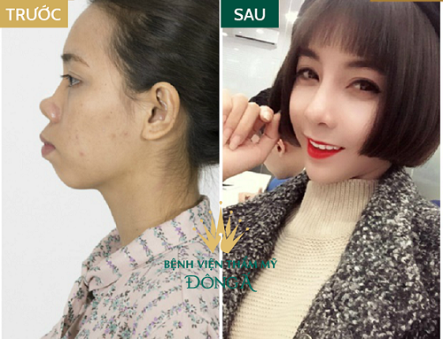 Mũi gãy và 5 điều nhất định phải biết để có sống mũi cao thẳng, cân đối - Ảnh 9