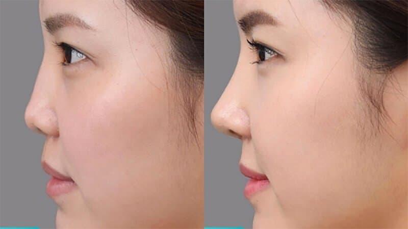 Đừng nhầm lẫn mũi hỉnh và mũi hếch? Xem tướng mũi hỉnh tốt hay xấu? Hình 1