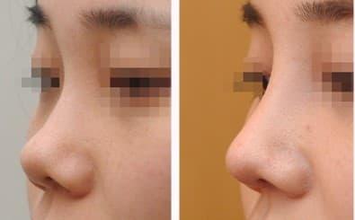 Đừng nhầm lẫn mũi hỉnh và mũi hếch? Xem tướng mũi hỉnh tốt hay xấu? Hình 7