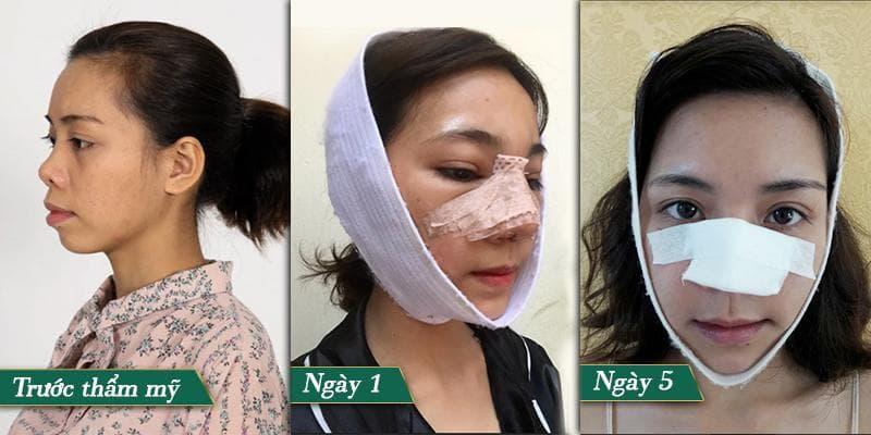 Đừng nhầm lẫn mũi hỉnh và mũi hếch? Xem tướng mũi hỉnh tốt hay xấu? Hình 8