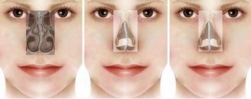 Những điều ít biết về mũi vẹo dưới đây sẽ khiến bạn giật mình - Ảnh 5